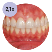 стоматологический операционный микроскоп global с увеличением 21х
