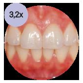 стоматологический операционный микроскоп global с увеличением 32х
