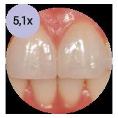 стоматологический операционный микроскоп global с увеличением 51х