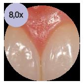 стоматологический операционный микроскоп global с увеличением 80х